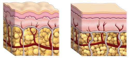 CELLULITE VS HEALTHY SKIN